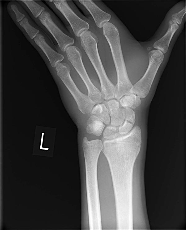 Zlomeniny skafoidu zápästia