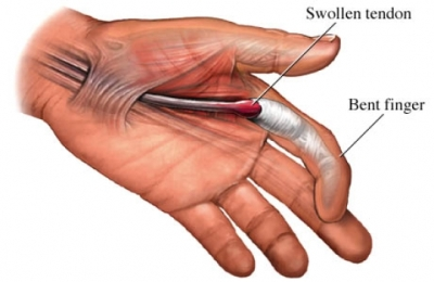 Skákavý prst